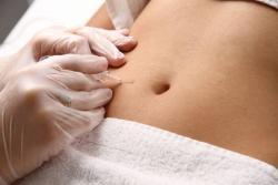 Carboxiterapia Gordura Localizada Celulite Flacidez