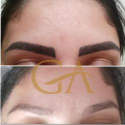 Remoção de microblading /micropigmentação de sobrancelhas