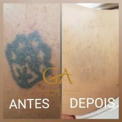 Remoção de Tatuagem a Laser Piracicaba