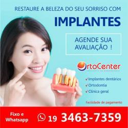 Implante dentário sbo americana