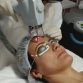 Depilação a laser promoção sp