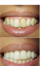 Saúde e beleza - CLAREAMENTO INTERNO DENTAL - CLAREAMENTO INTERNO DENTAL