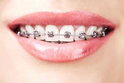 Saúde e beleza - Aparelho autoligado Odontológico - Aparelho autoligado Odontológico
